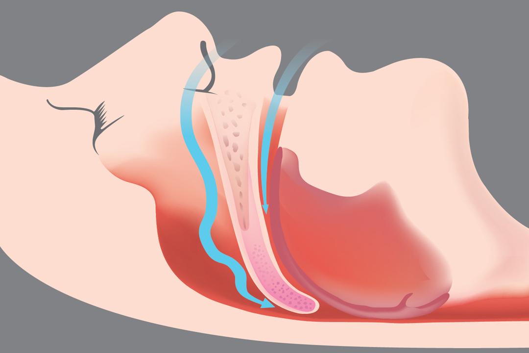schema apnee - dr ioan bulescu
