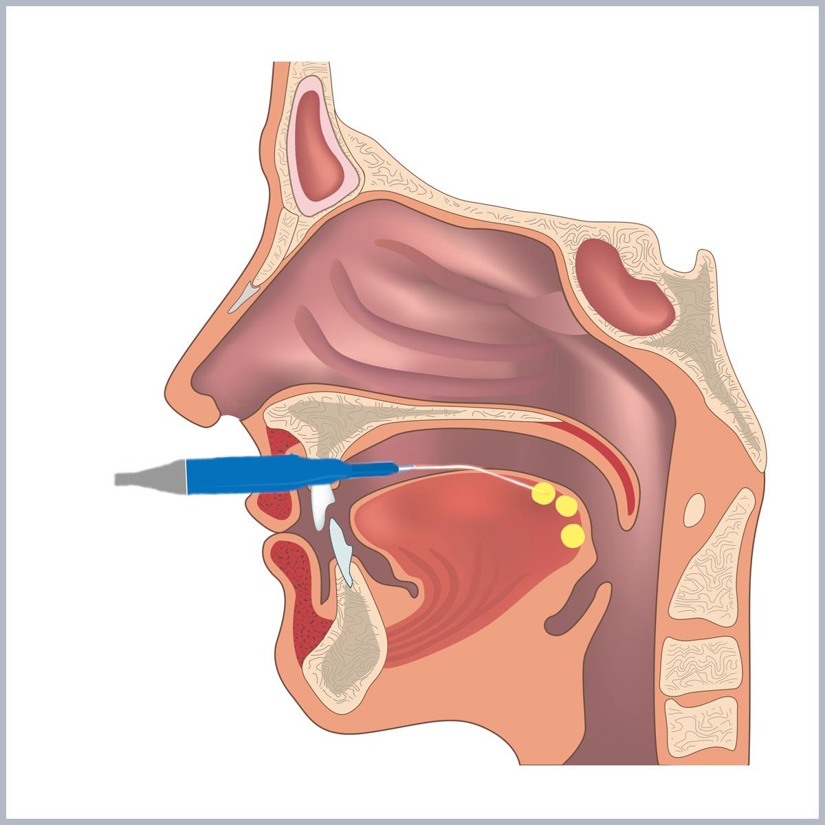 buton chirurgia limbii - dr ioan bulescu