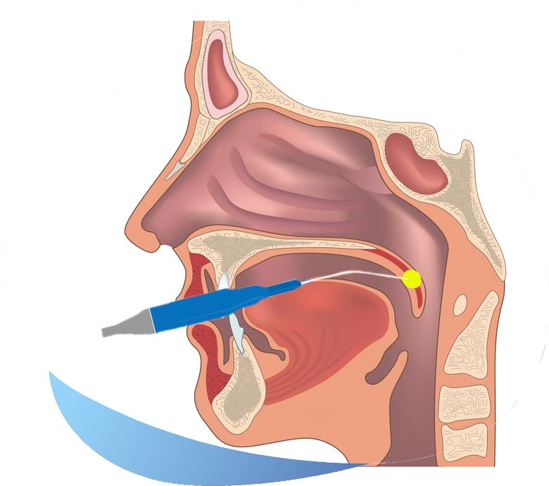header chirurgia valului palatin - dr ioan bulescu